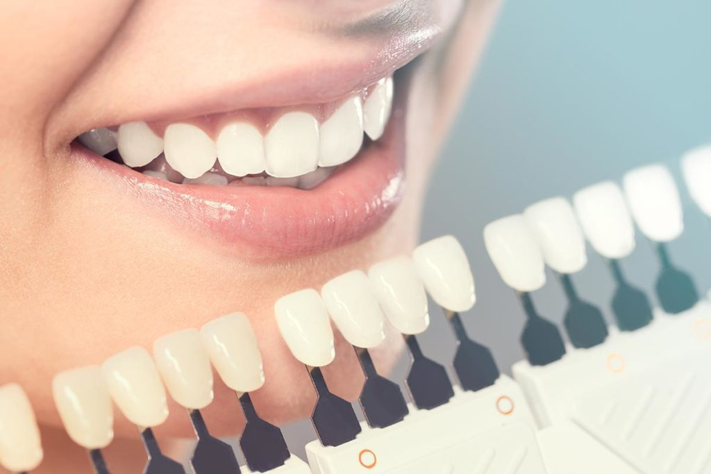 Cosmetic Dentistry in Anderson from Dr. Jay Elbrecht