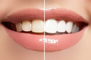 Teeth whitening in Anderson from Dr. Jay Elbrecht