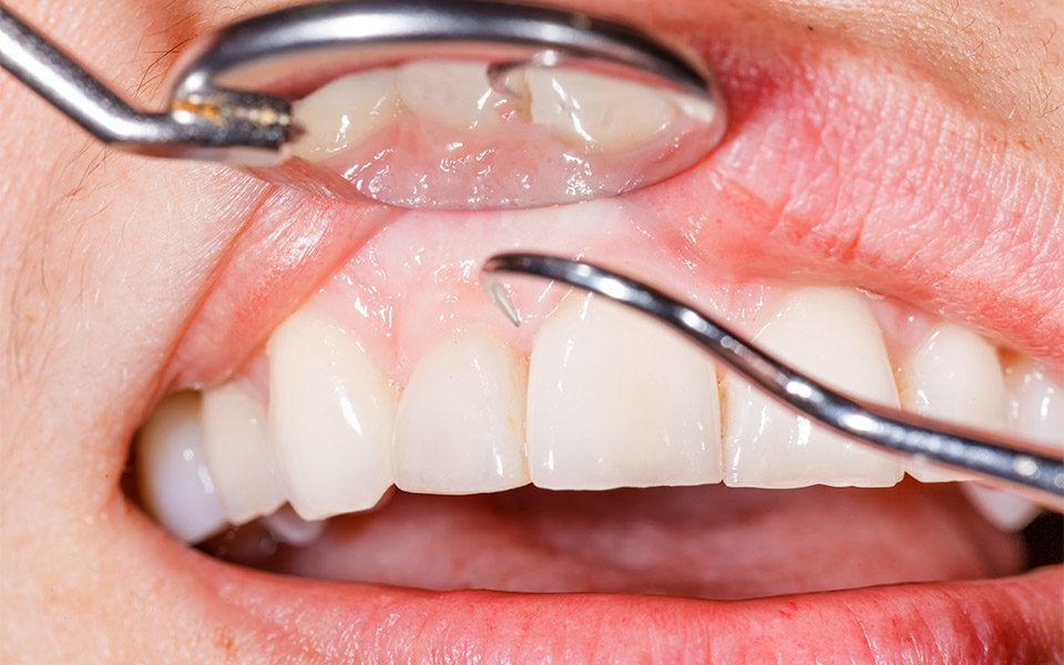 gum disease treatments anderson