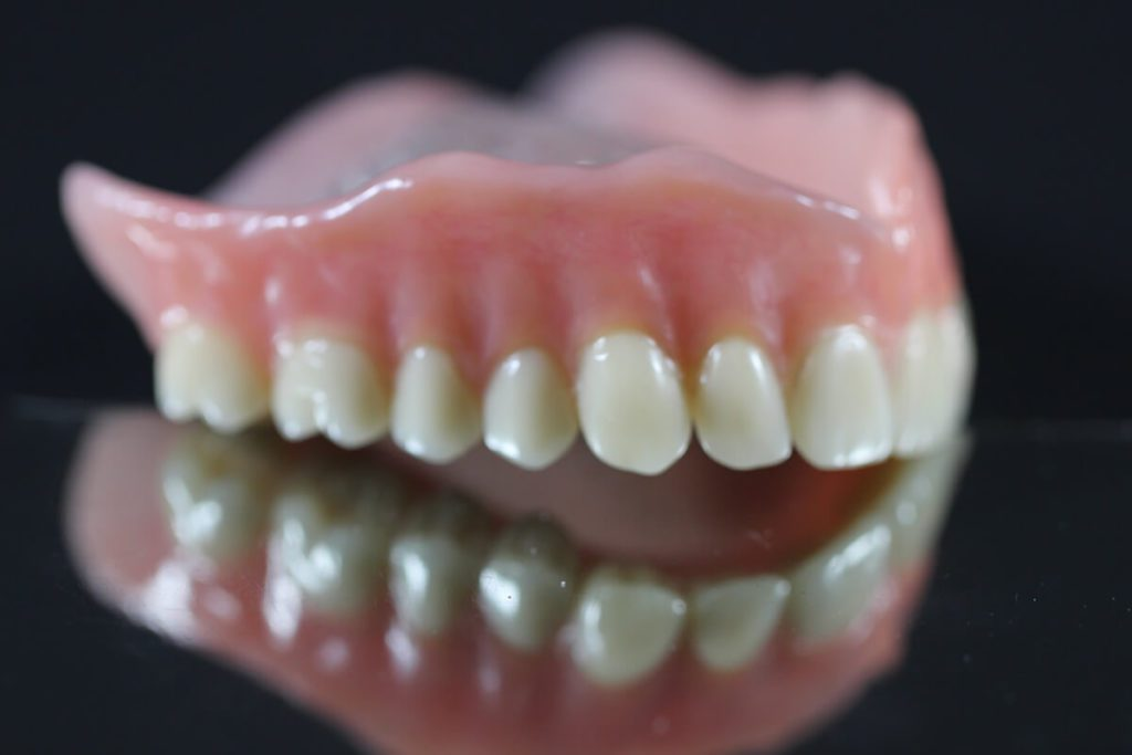 partial dentures anderson