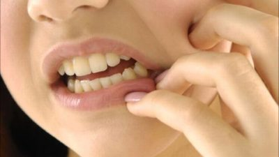 What are considered emergency dental services