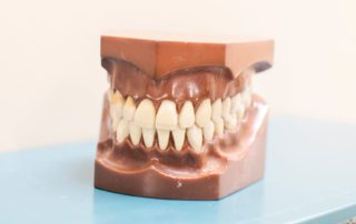 model of teeth showing how dental implant restoration works