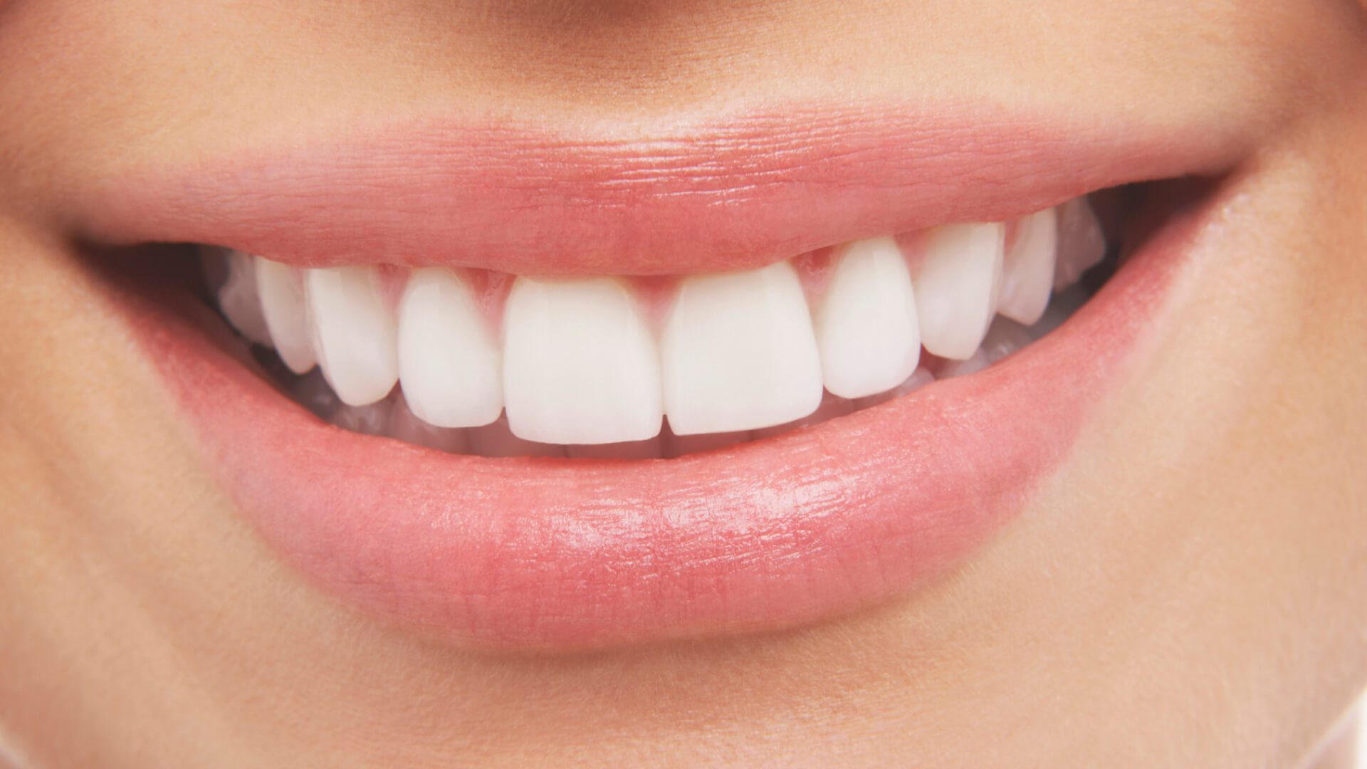 woman smiling after getting professional teeth whitening