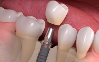 an anderson dentist determining whether someone is a good candidate for dental implants