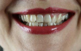 woman smiling with crooked teeth